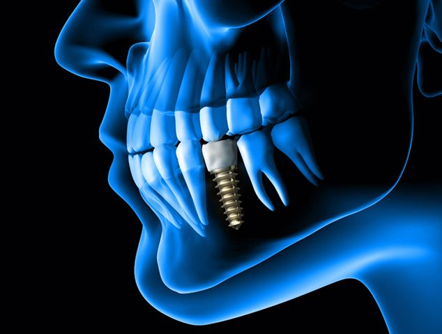 Digital image of jaw and implant