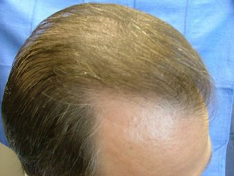 Hair Transplant Surgery Leawood Ks Kansas City Ks