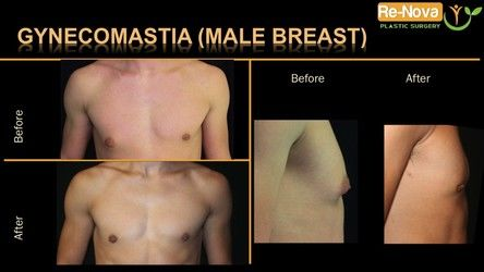 Male breast reduction Pittsburgh PA - gynecomastia Pittsburgh PA - treatment - areola - man boobs