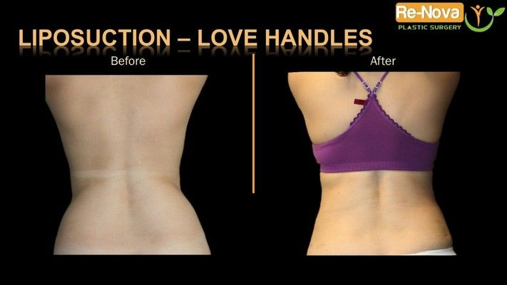 Before and after image of liposuction.