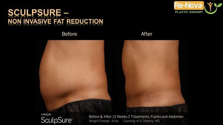 Before and after SculpSure® image