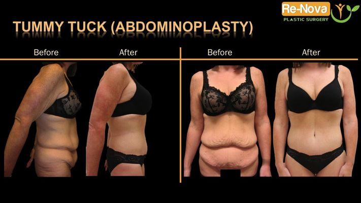 Before and after image of tummy tuck patient.