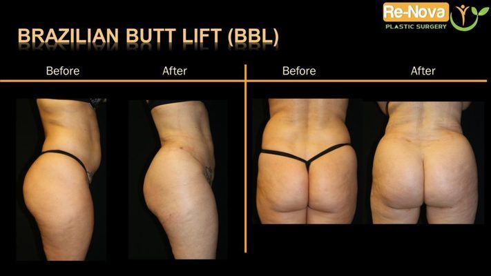 Before and after images of a Brazilian butt lift patient.
