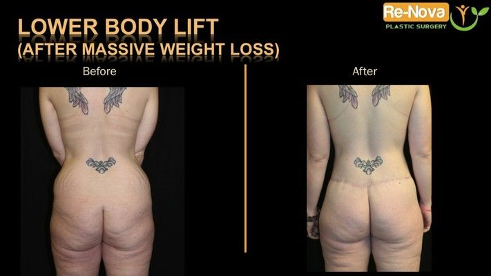 Before and after image of a circumferential body lift patient.