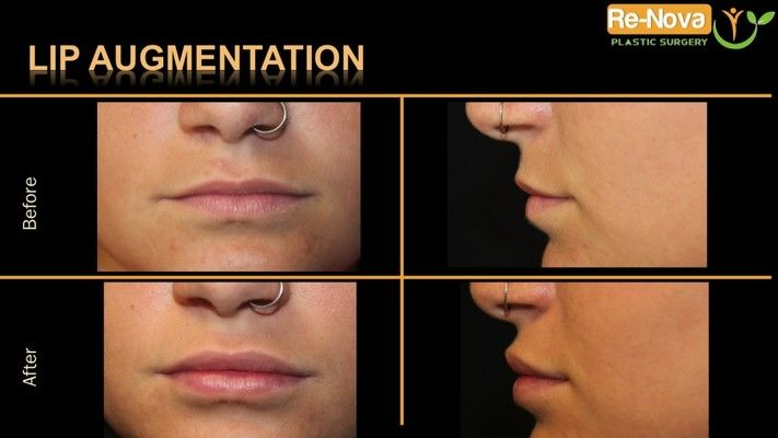 Before and after images of lip augmentation patient.