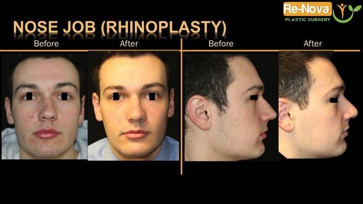 Before and after photos of a rhinoplasty patient.