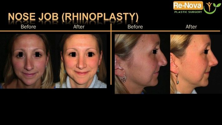 Before and after photos of a revision rhinoplasty patient.