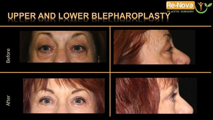 Before and after photos of an eyelid surgery patient.