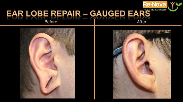 Before and after photos of an earlobe repair patient.