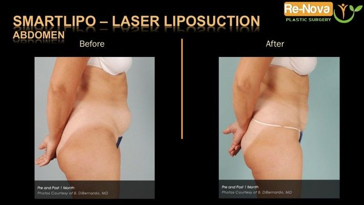 Before and after photos of a SmartLipo patient.