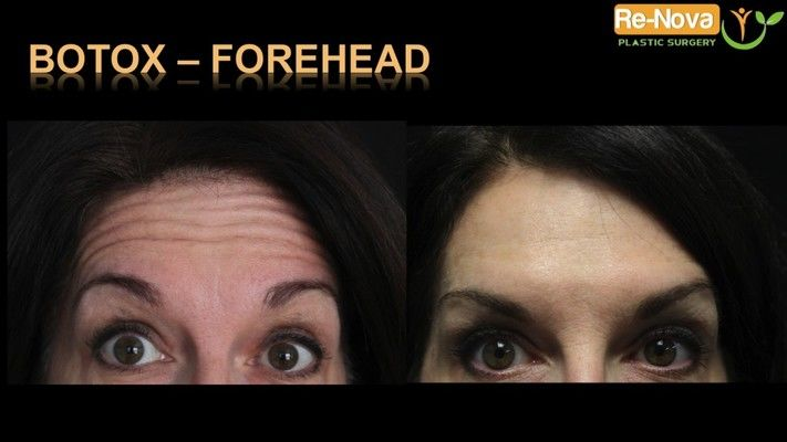 Before and after images of a Botox patient.