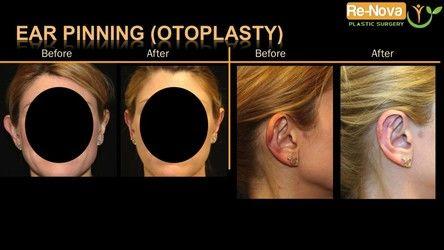 cosmetic ear surgery pittsburgh PA - otoplasty - ear pinning - procedure - patients - large ears - ear pinning surgery - julio clavijo - renova plastic surgery - Wexford PA