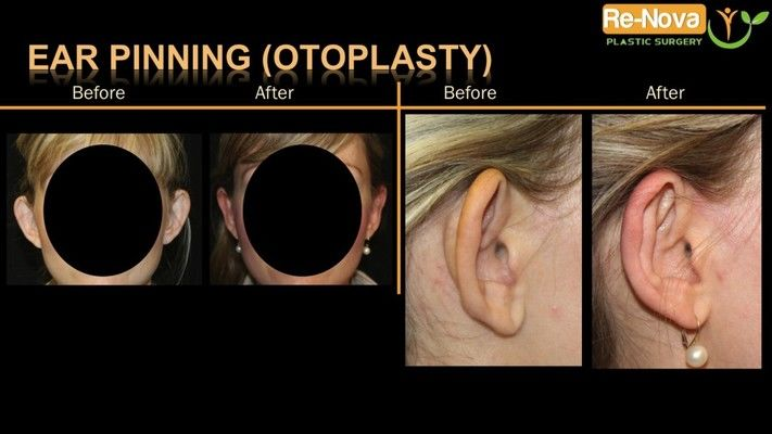 Otoplasty patient before and after photos.