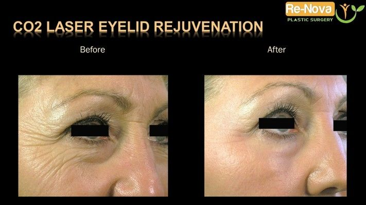 CO2 laser eyelid rejuvenation patient, before and after.