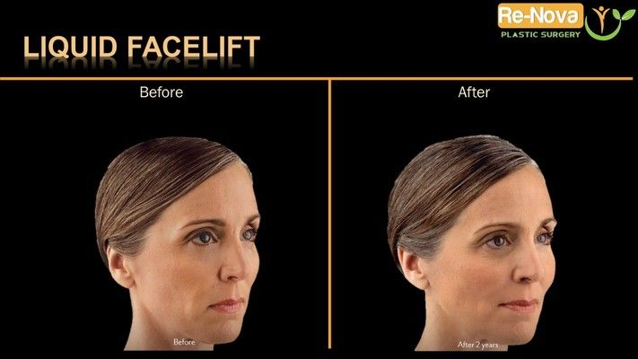 Before and after photos of liquid facelift patient.