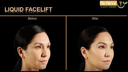 liquid facelift pittsburgh pa - injectable fillers Wexford - dermal fillers - face lift - reviews - before after - best - top - Julio Clavijo - renova plastic surgery - medical spa