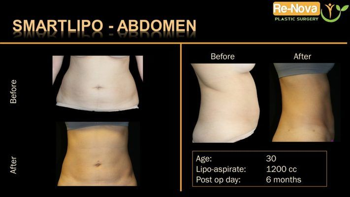 Before and after image SmartLipo.