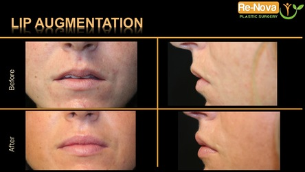 lip augmentation Pittsburgh PA - lip injections - dermal fillers - juvederm - restylane silk - procedure - med spa - thin lips - fuller lips