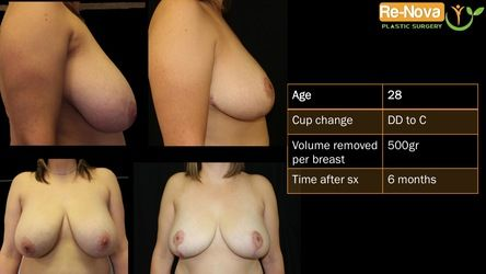 Breast Reduction Pittsburgh PA - procedure - before and after - recovery - cost - reduction mammaplasty