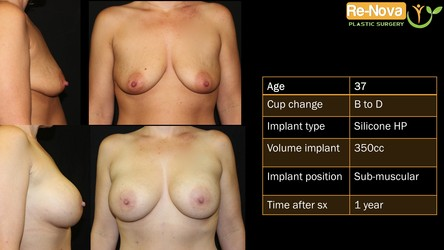 Breast implants before after Pittsburgh PA - Breast augmentation before after Pittsburgh PA - Breast implants photo gallery Pittsburgh PA - Breast augmentation photo gallery Pittsburgh PA - Natural Breast augmentation Pittsburgh PA - before and after - photo gallery - boob job - enhancement - cost - saline implants - silicone implants - small - natural - looking-fake - price- recovery - julio clavijo - renova plastic surgery - Wexford PA