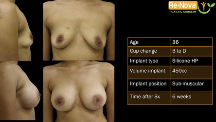 Breast implants Pittsburgh PA - Natural Breast augmentation Pittsburgh PA - before and after - photo gallery - boob job - enhancement - cost - saline implants - silicone implants - small - natural - looking-fake - price- recovery - julio clavijo - renova plastic surgery - Wexford PA