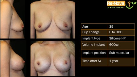 Breast implants Pittsburgh PA - Breast augmentation Pittsburgh PA - before and after - photo gallery - boob job - enhancement - cost - saline implants - silicone implants - small - natural - looking-fake - price- recovery - julio clavijo - renova plastic surgery - Wexford PA