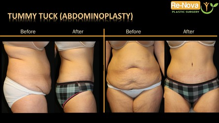 Tummy tuck before after Pittsburgh PA - Abdominoplasty before after Pittsburgh PA - Tummy tuck photo gallery Pittsburgh PA - Abdominoplasty photo gallery Pittsburgh PA - surgery - min tummy tuck -ReNova Plastic Surgery - extended - cost -belt - belly - best tummy tuck surgeon pittsburgh - top - Dr Julio Clavijo - Wexford - sonobello