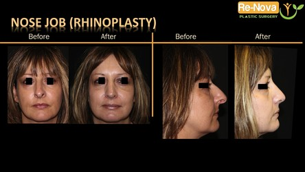 Rhinoplasty before after Pittsburgh PA - Rhinoplasty photo gallery Pittsburgh PA - cosmetic rhinoplasty - nose job - open rhinoplasty - closed rhinoplasty - surgical rhinoplasty - nasal tip - candidates - revision - septum - septoplasty - Julio Clavijo - Renova plastic surgery