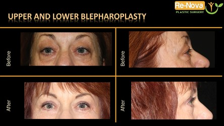 eyelid-surgery-Blepharoplasty-Pittsburgh–PA-photo gallery - before after - cost-lift-upper-lower-double-cosmetic-bag-skin-procedure-drooping-Wexford–Monroeville-Julio-clavijo-renova plastic surgery