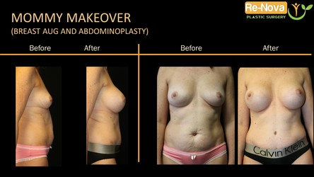 mommy makeover photo gallery Pittsburgh PA - mommy makeover before after Pittsburgh PA - Surgery- treatment consultation - breast augmentation-implants-tummy tuck abdominoplasty-cost-price-scar-Wexford-julio-clavijo-renova