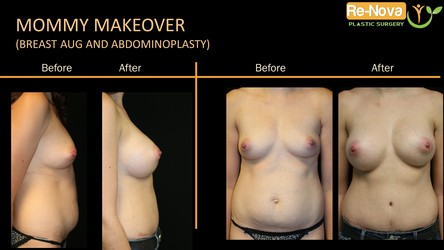 mommy makeover Pittsburgh PA - Surgery- treatment consultation - breast augmentation-implants-tummy tuck abdominoplasty-cost-price-scar-Wexford-julio-clavijo-ReNova Plastic surgery