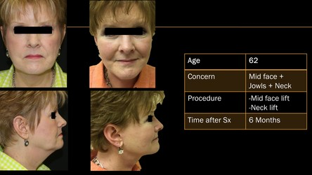 Facelift Pittsburgh, PA - rhytidectomy Wexford -lifestyle-face-cost-mini-before-after-julio-clavijo-ReNova Plastic-Surgery