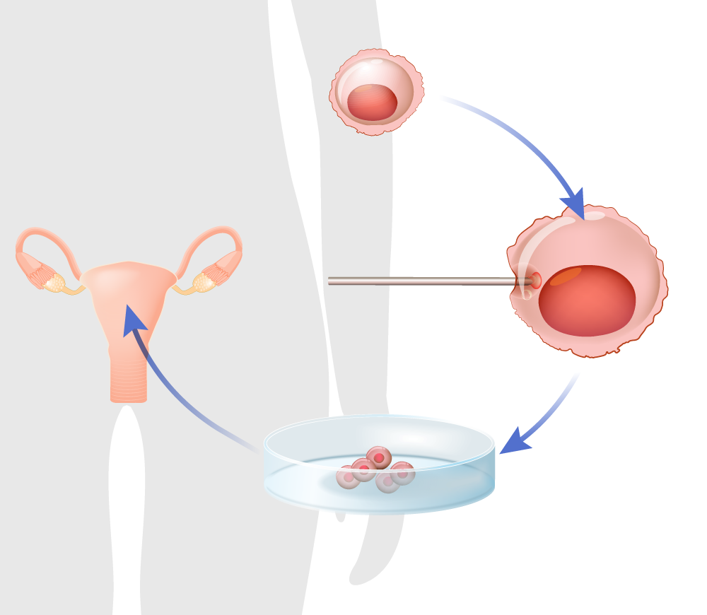 Illustration depicting egg donation process and IVF