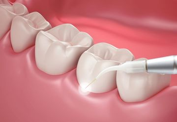 image of dental laser treatment
