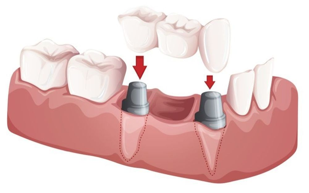 image of a dental bridge