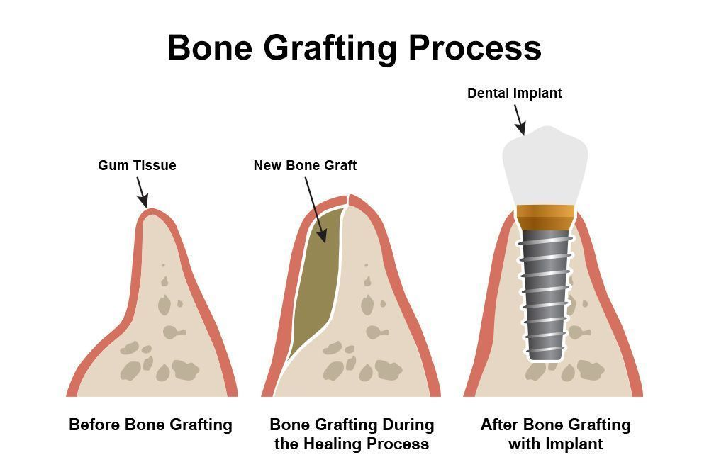 A diagram of the bone grafting process