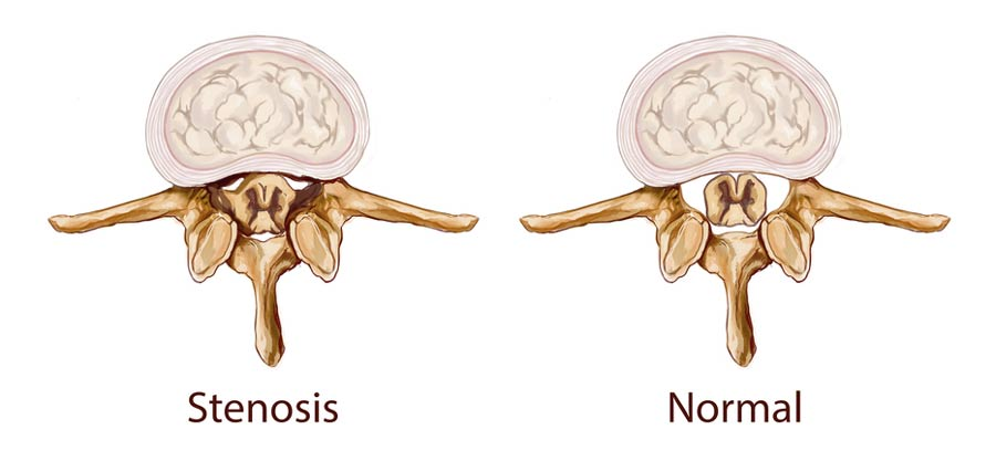 side by side of spinal canal with or without stenosis