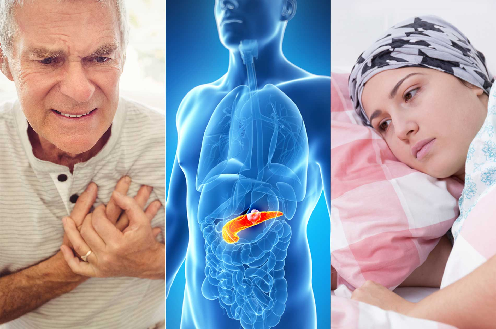 A man clutching his chest, an illustration of the pancreas, and an ill-looking woman.