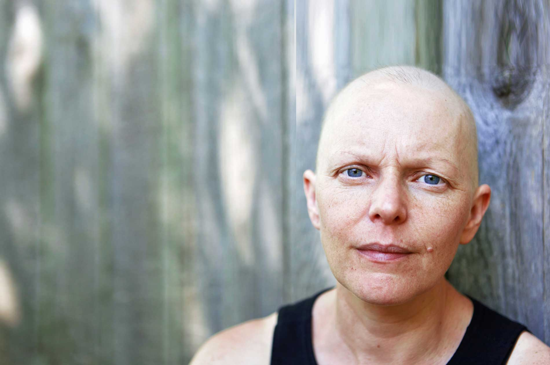 A woman who has suffered permanent hair loss