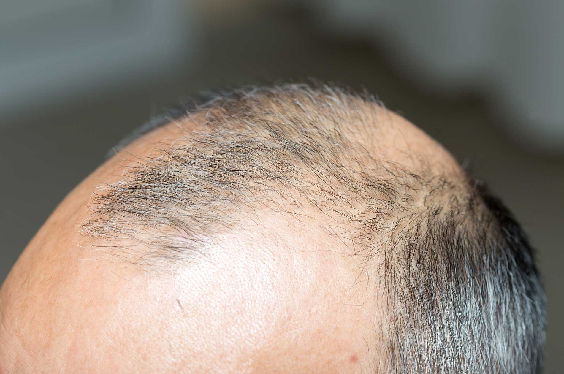 A man suffering from alopecia