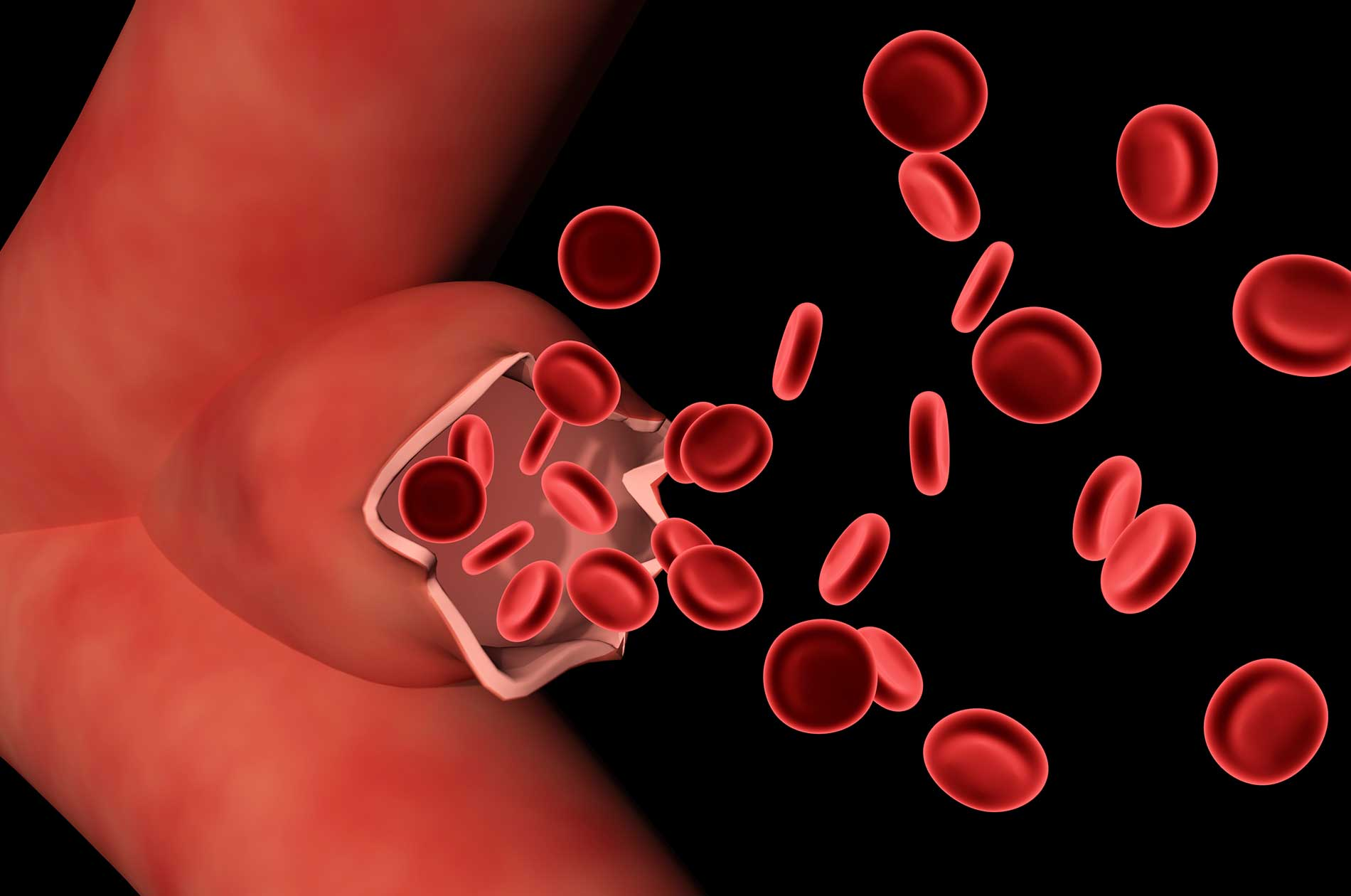 Red blood cells after aortic aneurysm