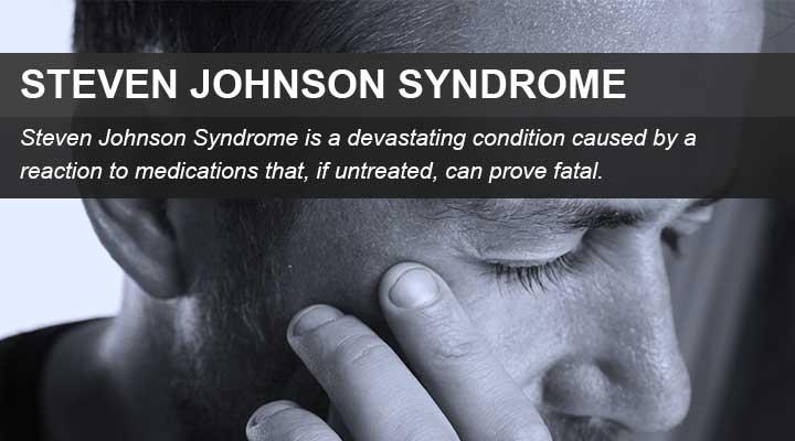 Steven Johnson syndrome lawsuit