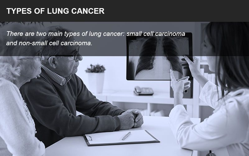 Types of lung cancer lawsuits