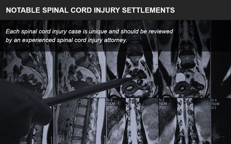 Spinal cord injuries often lead to large settlements