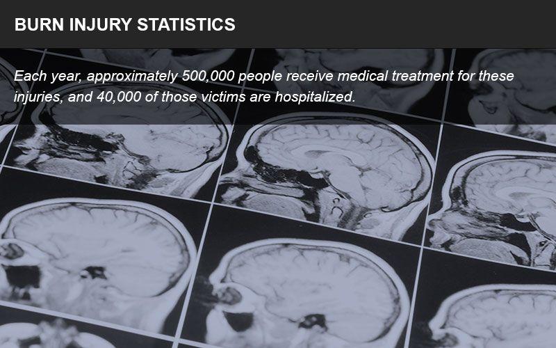 Burn injury statistics infographic