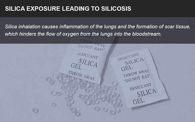 Silica exposure lawsuit infographic