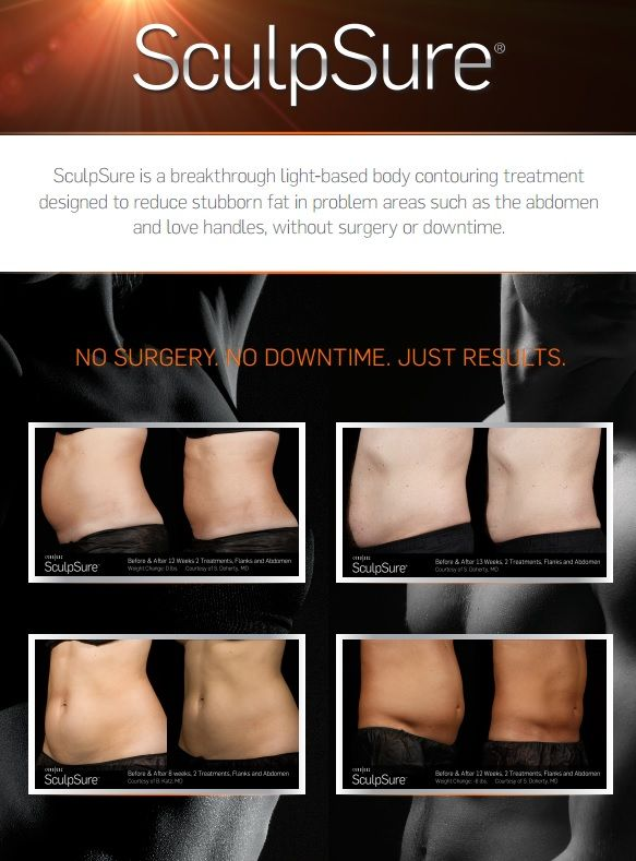 SculpSure® marketing image.