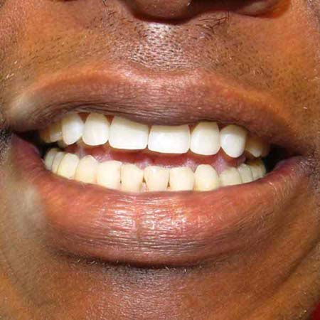 After implant dentistry.