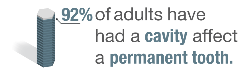 92% of adults have had a cavity affect a permanent tooth.""