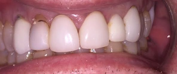 Before IPS e.max® crowns.